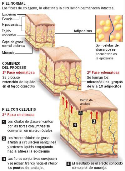 Cómo vencer a la celulitis?
