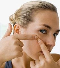 cómo combatir el acne juvenil